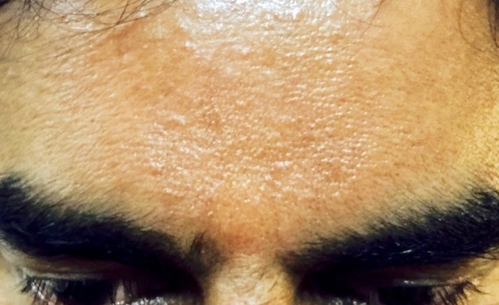 Aum sign appeared on Mohanji's forehead during the satsang